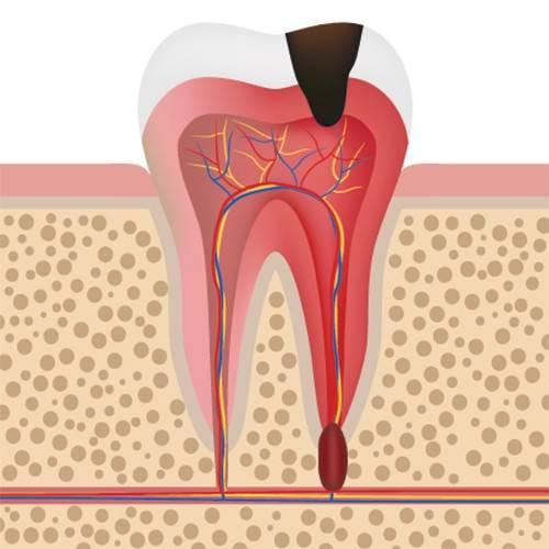 Опасность гранулемы корня зуба и способы лечения