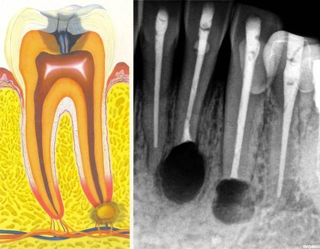 Особенности лечения гранулематозного периодонтита: как избавиться от болезни без риска осложнений