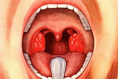 Чем лечить ожог во рту