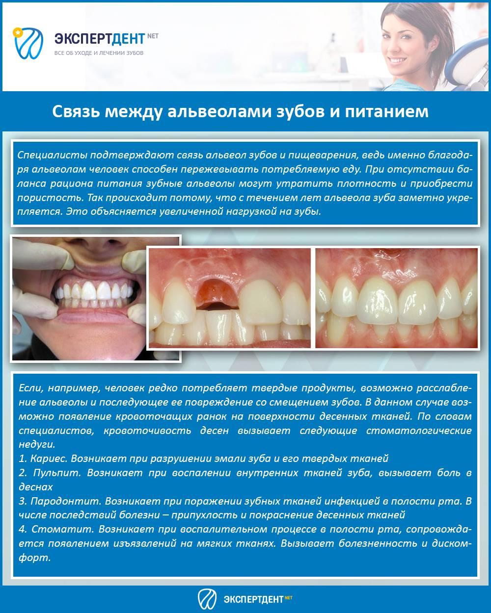 Что такое альвеолы во рту, их влияние на зубной ряд. что такое альвеолы во рту функции альвеолярных ячеек