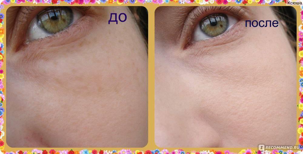 Домашние рецепты отбеливающих масок для кожи лица от пигментных пятен