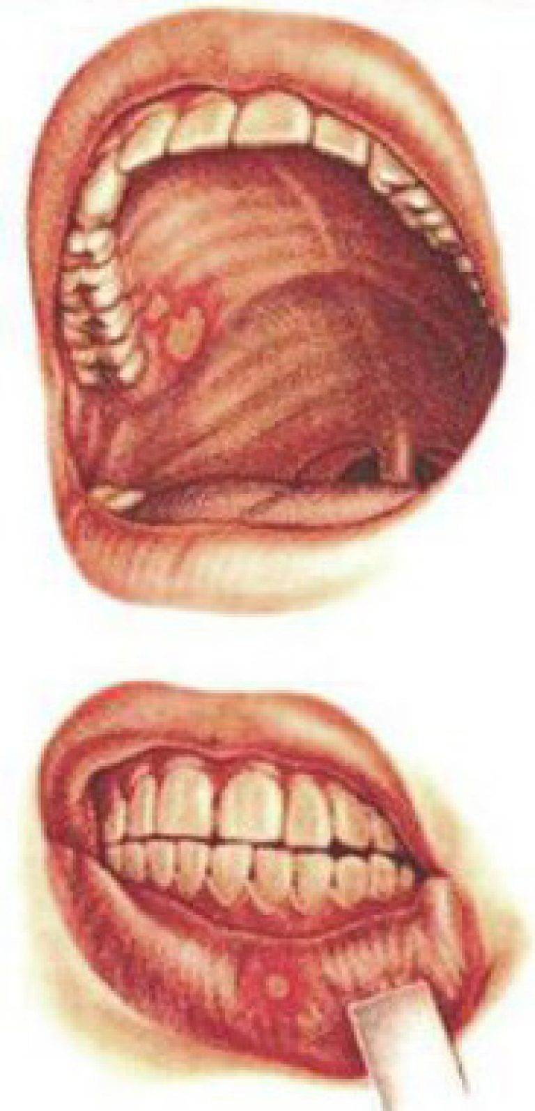 Почему на внутренней стороне губы или десне появился пузырь? прозрачный, кровянистый и другие