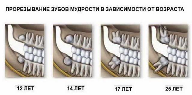 Болит десна в конце нижней челюсти: причины и методы лечения. болит десна: что делать и как лечить боль