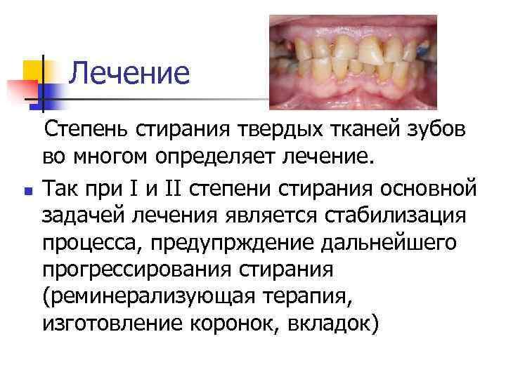 Повышенная стираемость зубов – основные причины проблемы, как устранить
