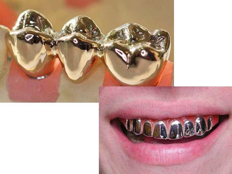 Материалы сплава и этапы изготовления металлических штампованных зубных коронок с фото