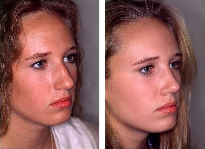 Идеальное лицо с помощью ринопластики кончика носа. показания к операции, последствия и другое