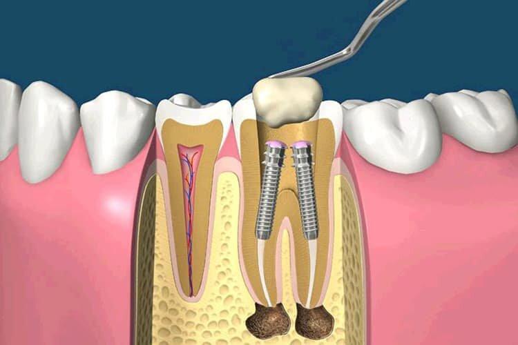 Может ли после установки штифта болеть зуб без нерва, как избавиться от боли при надавливании?