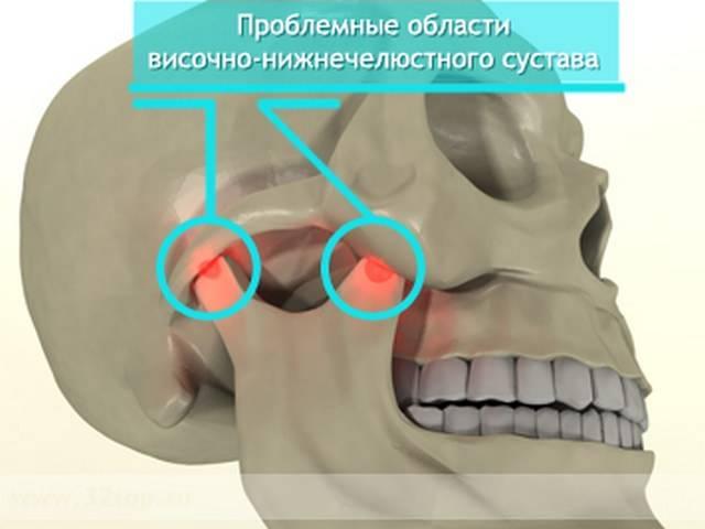 Симптомы периостита зуба с фото, лечение воспаления надкостницы нижней или верхней челюсти