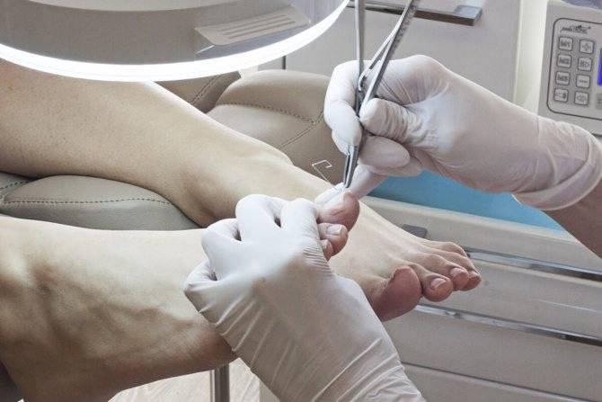 Все что нужно знать о травме ногтя