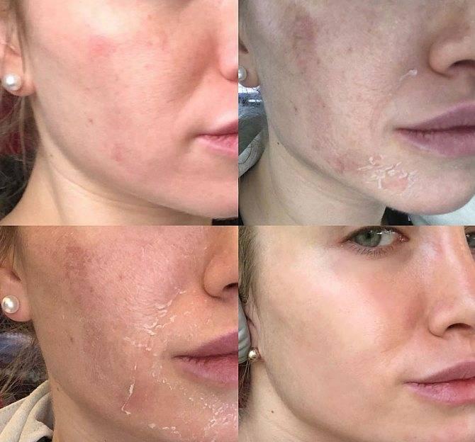 Мезотерапия от пигментных пятен – на лице, отзывы, при рубцах