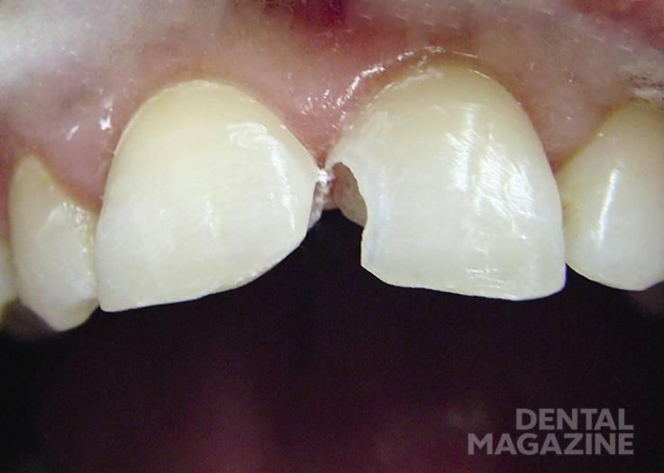 Патологическая стираемость зубов: симптомы и лечение