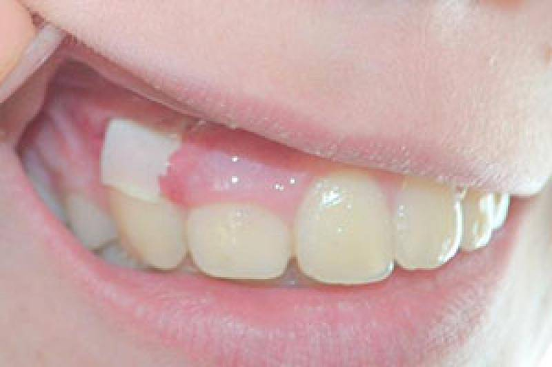 Можно ли удалять зуб при флюсе: показания и последствия