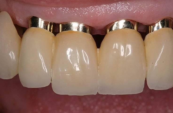Зубы с напылением