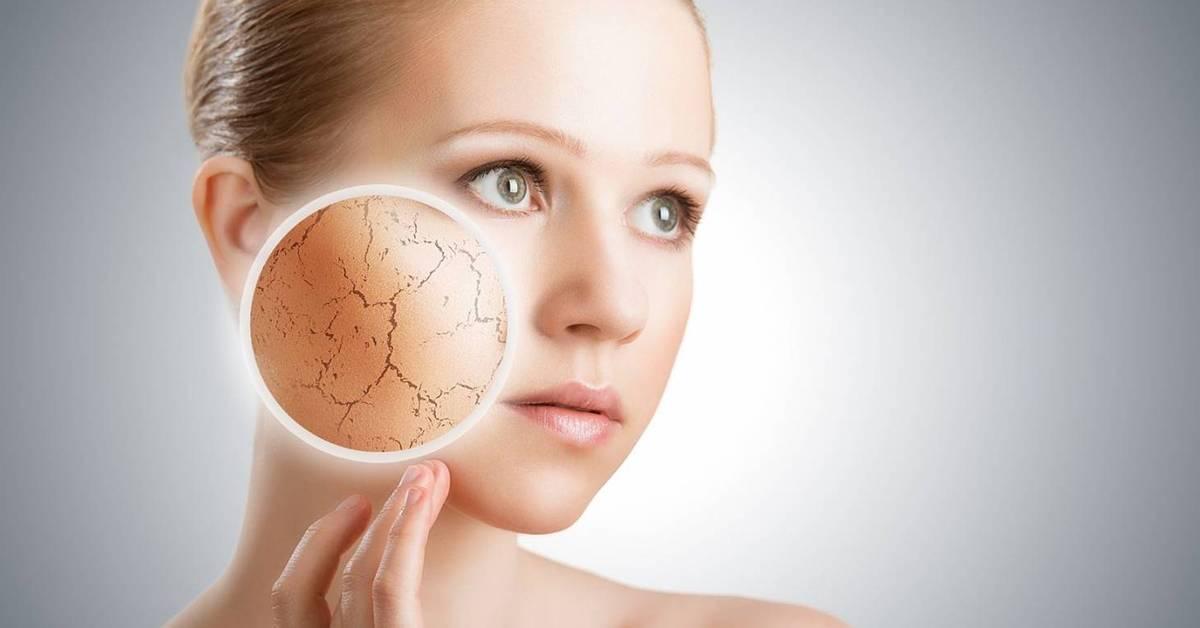 Почему кожа становится сухой – это надо знать!