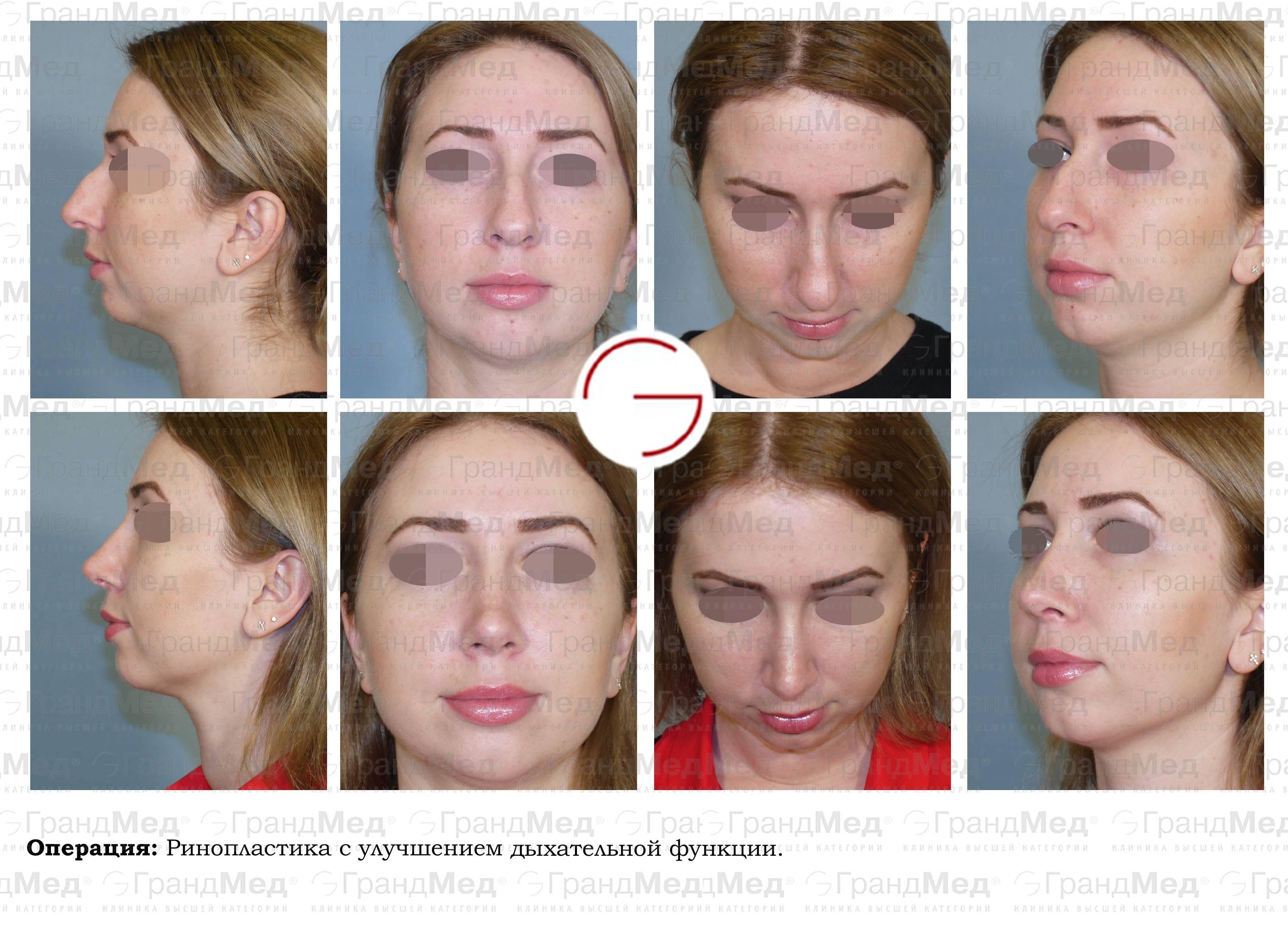 Плюсы и минусы пластики носа без хирургического вмешательства