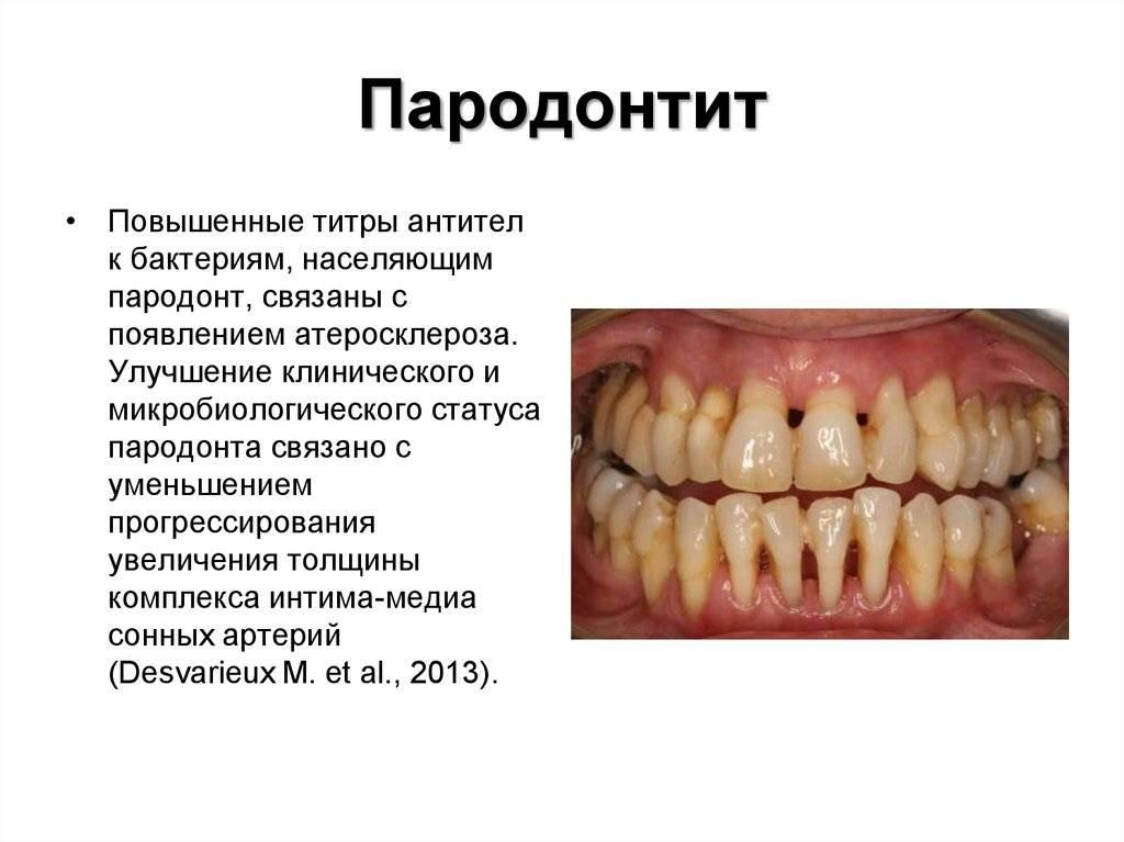 Как отбелить тетрациклиновые зубы: виниры и отбеливание