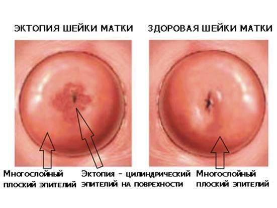 Что такое железистая псевдоэрозия шейки матки?