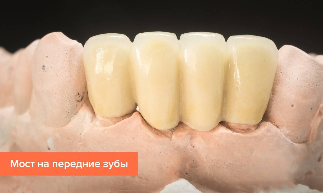 Что нужно знать о протезировании зубов при пародонтозе