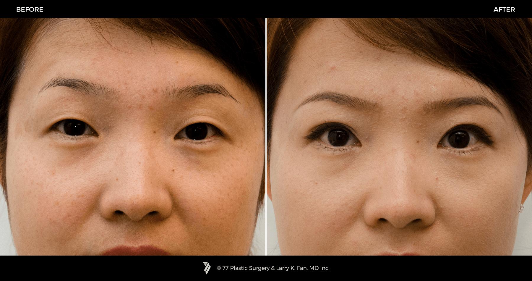 Операция по увеличению глаз, изменению формы, разреза, кантопластика