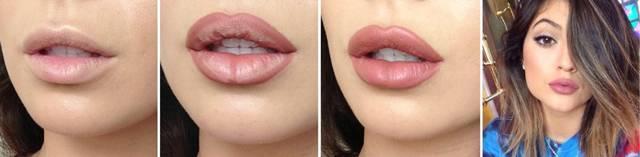Как увеличить губы в домашних условиях – что помогает?