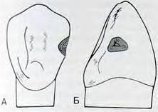 Тема: « классификация кариозных полостей по блэку. основные принципы препарирования кариозных полостей. этапы и особенности классического препарирования. - презентация