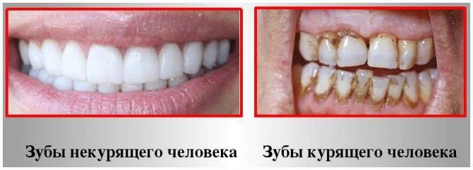Выпадают здоровые зубы – что делать