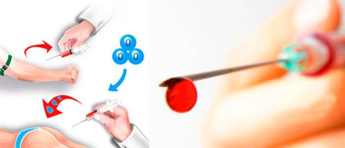 Аутогемотерапия против прыщей — эффективное очищение и восстановление кожи