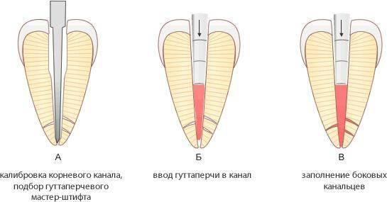 Методы обтурации корневых каналов и какие материалы используют при процедуре