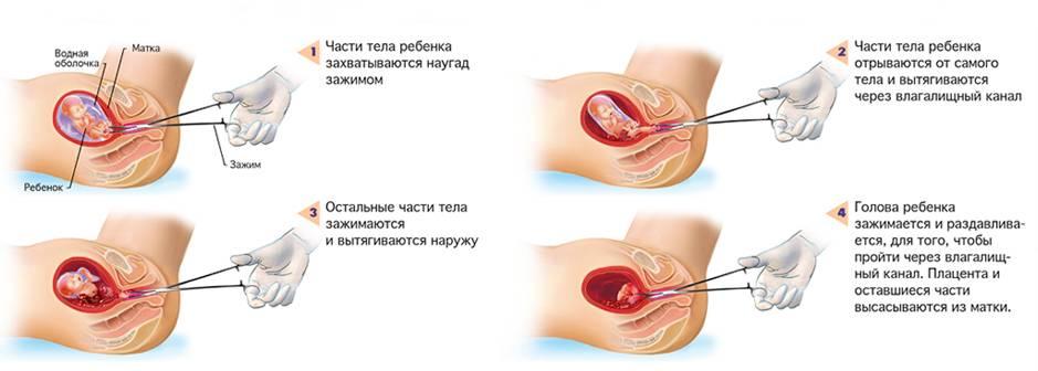 Особенности ограничений в сексе после медикаментозного аборта