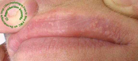 Опасен ли белый налет на половых губах: причины и лечение