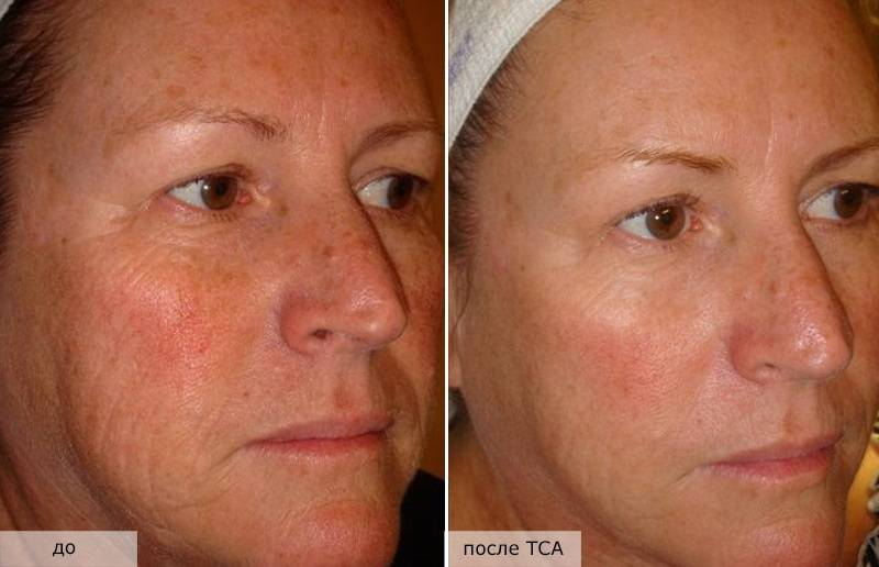Tca-пилинг или пилинг с трихлоруксусной кислотой для лица