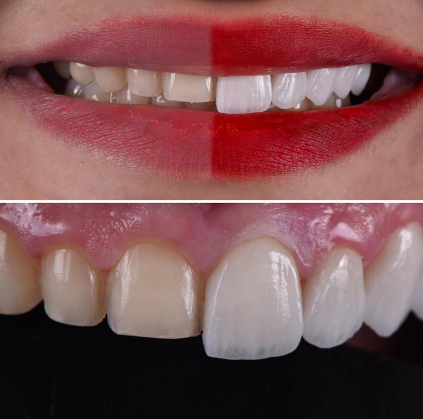 Виниры: стоимость за 1 зуб