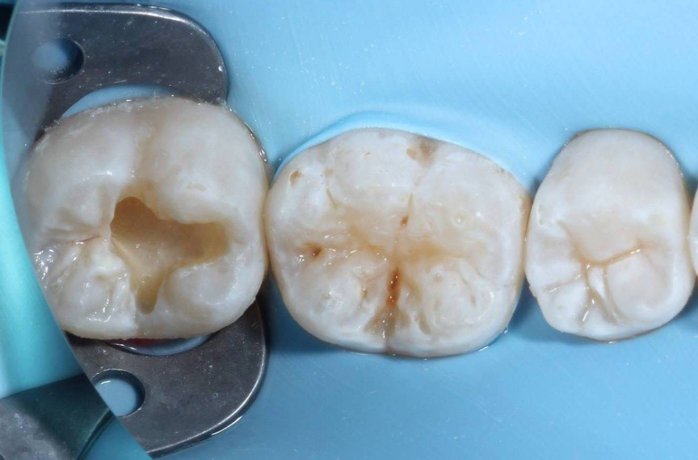 Кариес корня зуба: чем это опасно и как лечить