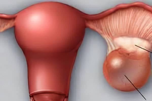 Что такое двухкамерная киста правого и левого яичника