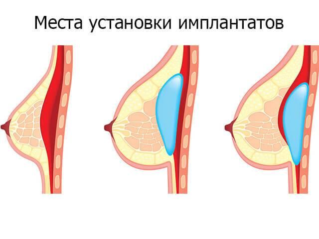 Липолифтинг — увеличение и коррекция грудных желез жиром