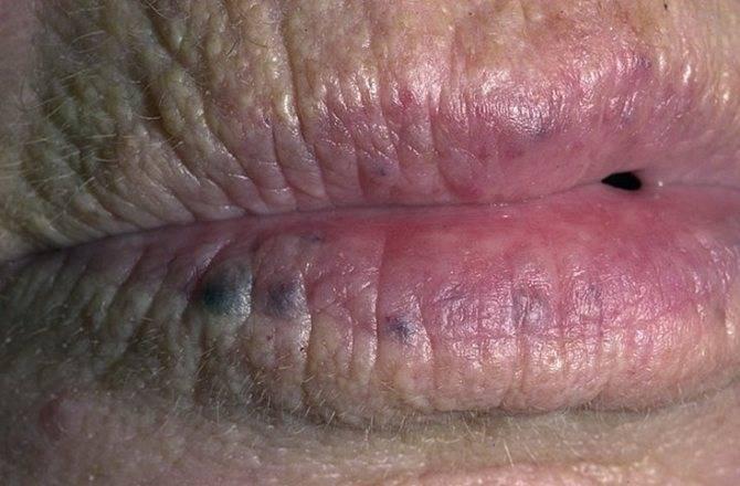 Черные пятна на губах: 13 причин
