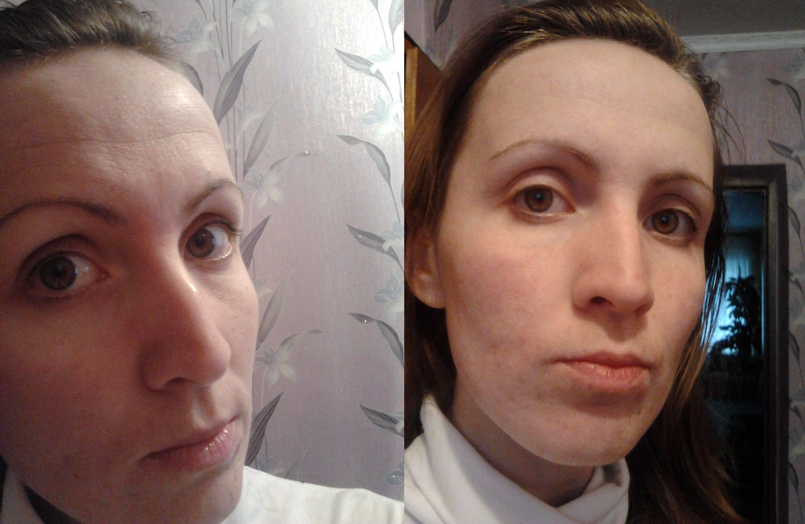 Кальция хлорид для лица пилинг. отзывы, как делать, вред и польза, фото до и после