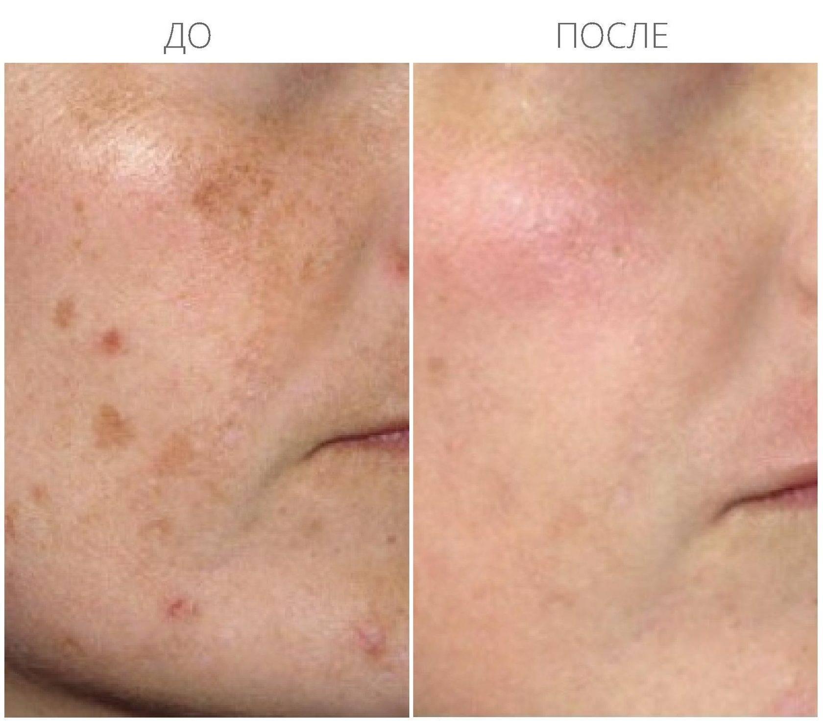 Таблетки как метод избавления от пигментных пятен на лице и теле