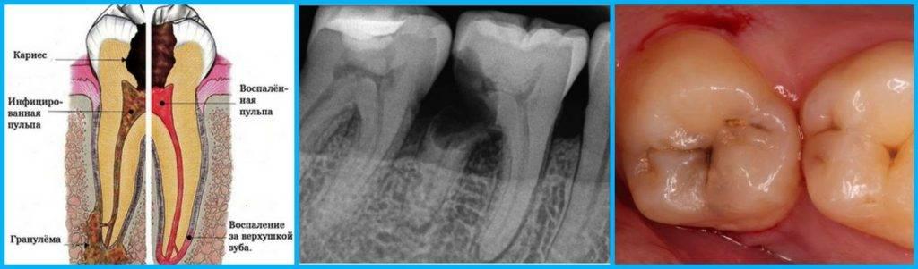 Поражение зубов кариесом: симптомы и признаки, как развивается и как лечится