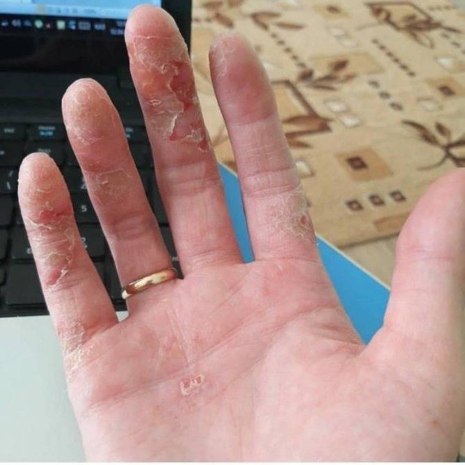 Почему сохнет и трескается кожа на руках