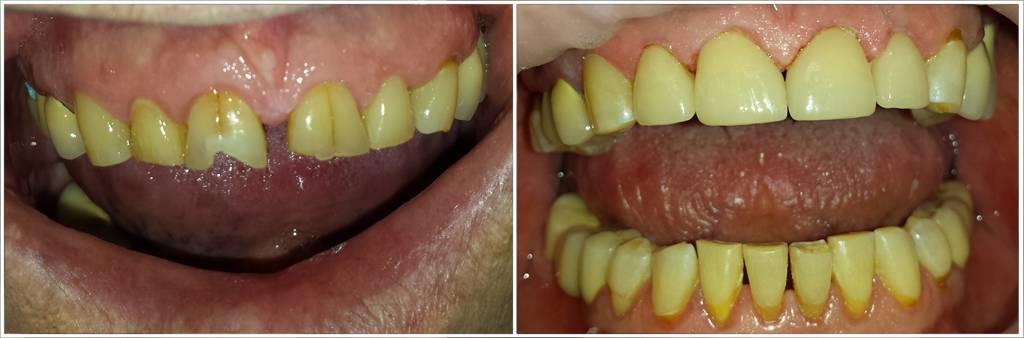 Сколько дней может болеть зуб после установки штифта