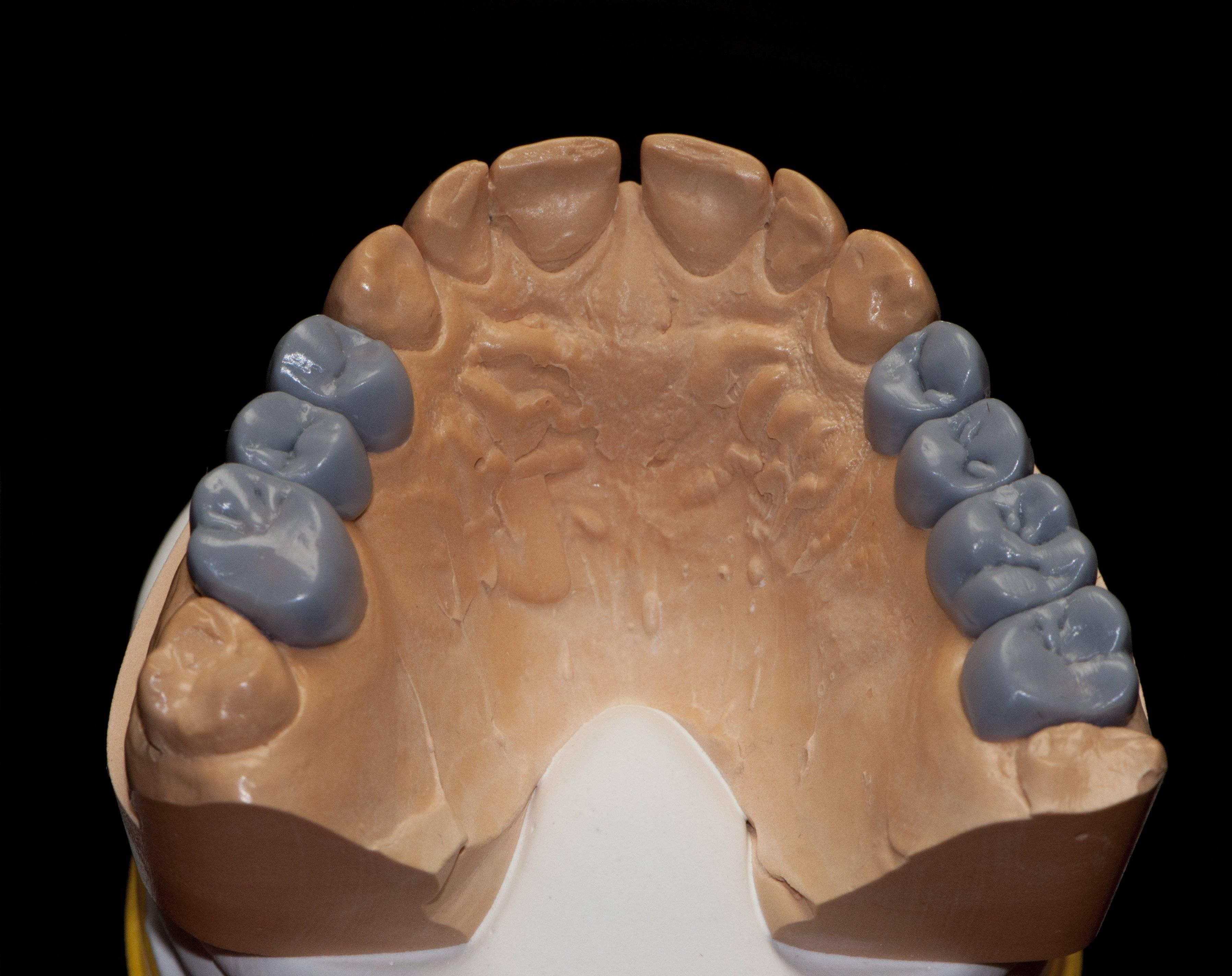 Особенности современного воскового моделирования зубов