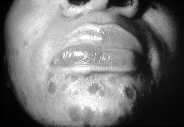 Сифилис у женщин — фото