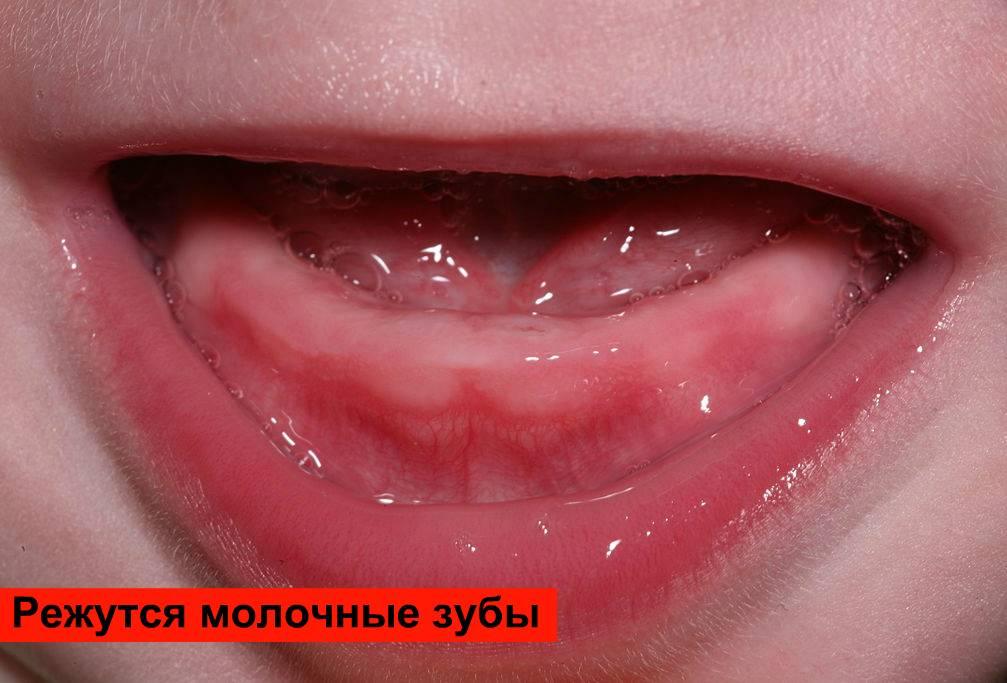 Фиолетовая десна у ребенка при прорезывании зубов
