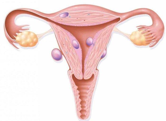 Народные средства от миомы матки
