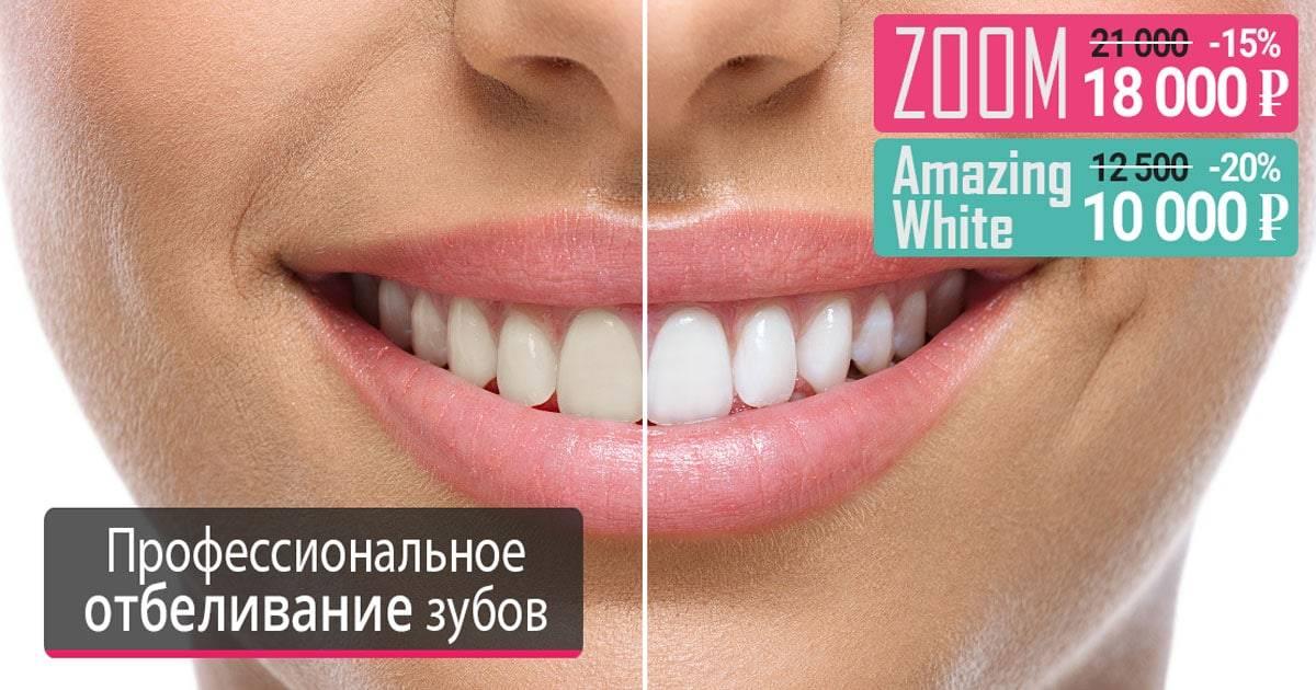 Отбеливание зубов zoom zoom