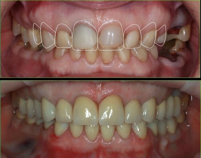 Стираемость зубов что делать
