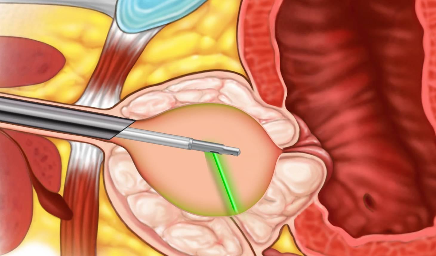 Марсупиализация кисты бартолиновой железы: описание методик лечения, последствия, советы специалистов