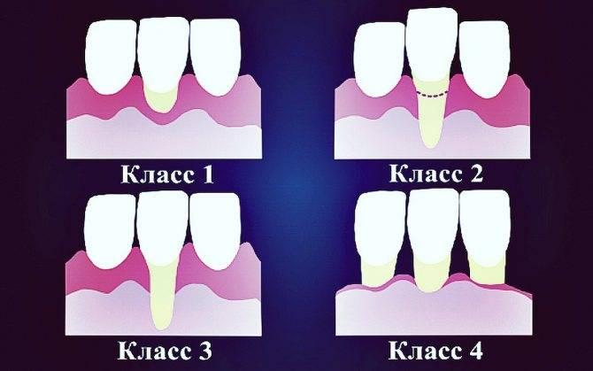 Почему десна нарастает на зуб