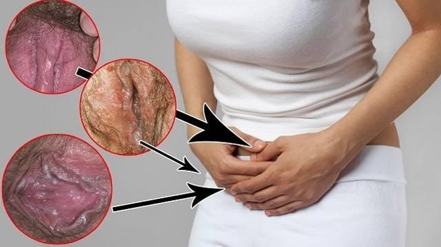 Высыпания на половых органах: причины у женщин и мужчин